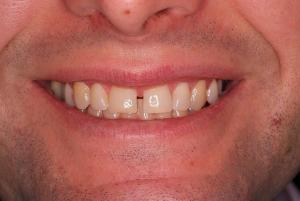 Före behandling porslinfasader - TandCity