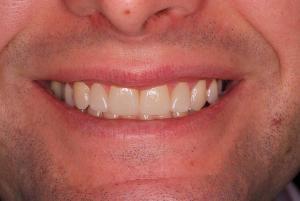 Efter behandling porslinfasader -TandCity