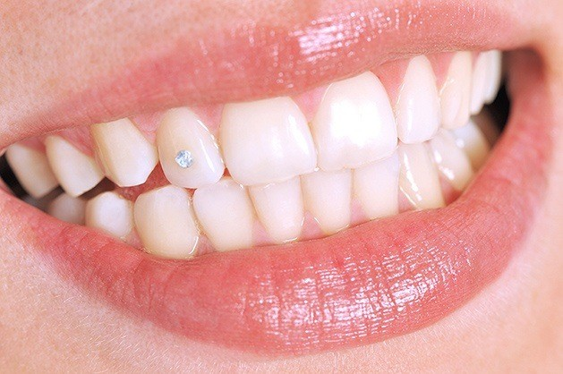 Lägg lite extra glans på leendet med tandsmycken i Malmö - TandCity