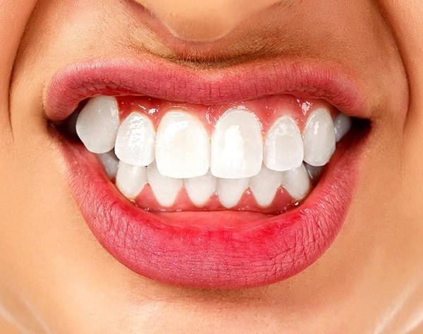 Få hjälp med en kvalificerad behandling av tandgnissling i Malmö - TandCity
