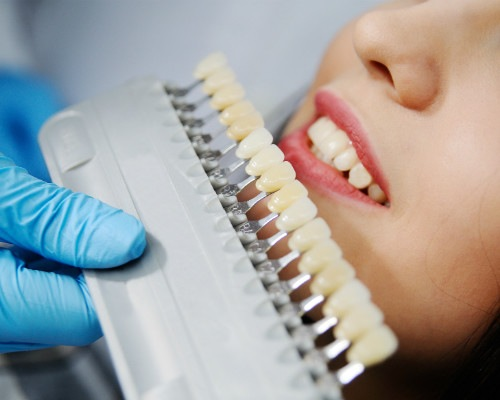 Professionell tandläkare i Malmö för keramiska tandkronor - TandCity