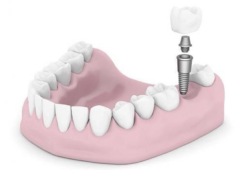 Ersätt en saknad tand med tandimplantat i Malmö - TandCity