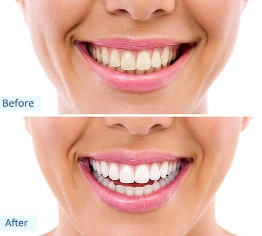 Behandling tandblekning före och efter - TandCity i Malmö