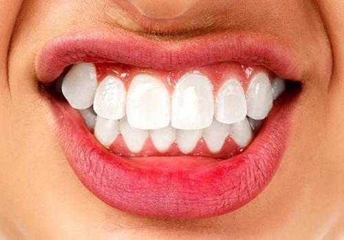 Fine tænder Tandcity