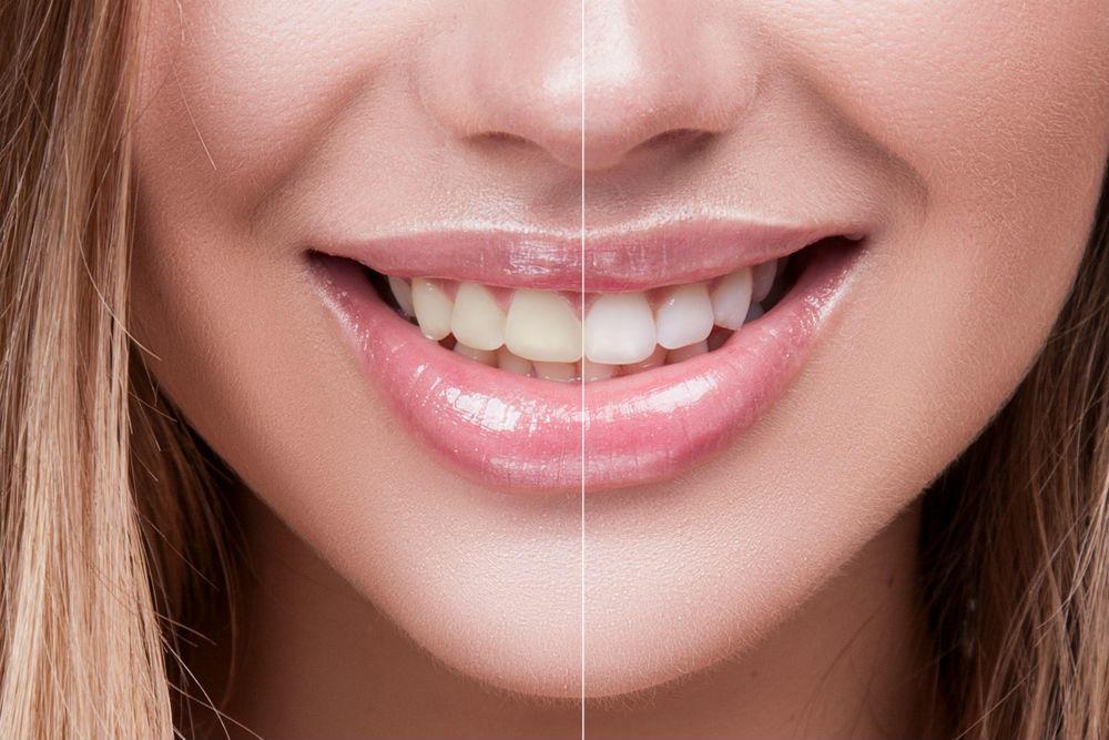 Tandblekning behandling i Malmö -TandCity