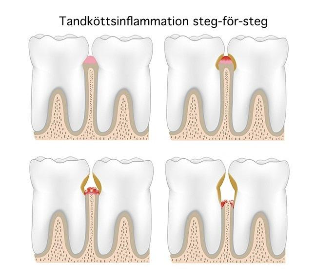 Metod för att behandla tandköttsinflammation steg för steg