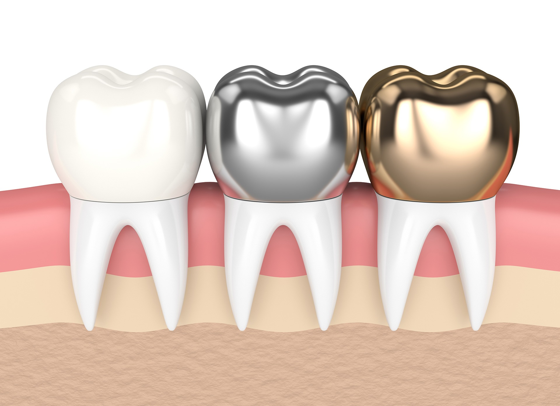 Håll din tand stil med kvalitets tandsmycken på TandCity