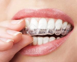 tandblekning folktandvården före efter