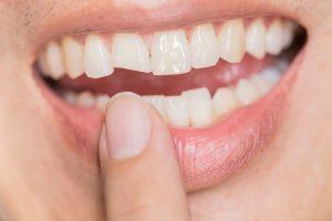 Spricka i tanden | TandCity