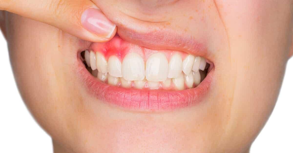 inflammerat tandkött behandling