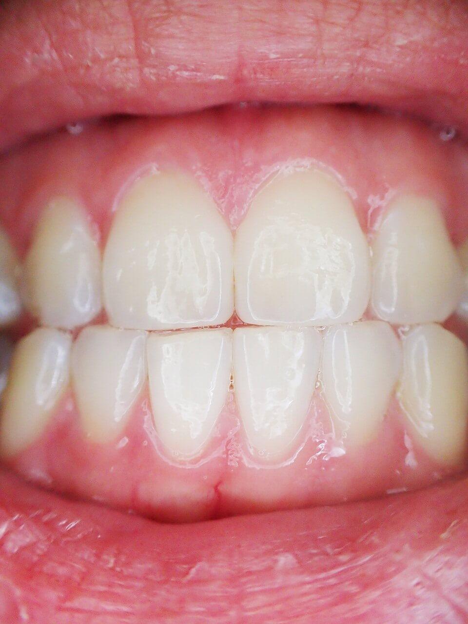 Tandlossning (parodontit) – Symptom, Orsaker och Behandling
