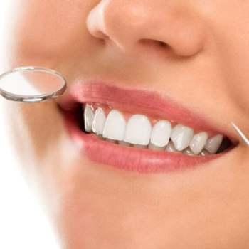 tandblekningsutrustning